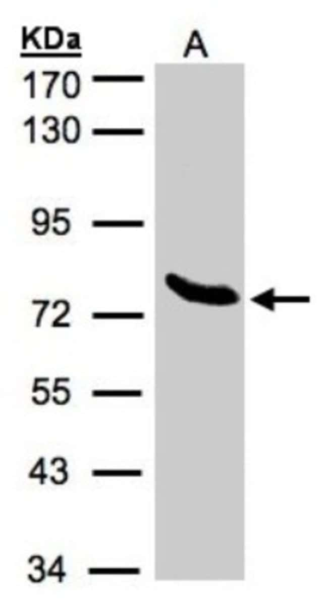 anti-ZNF45, Polyclonal, Novus Biologicals 0.1mL; Unlabeled:Life Sciences