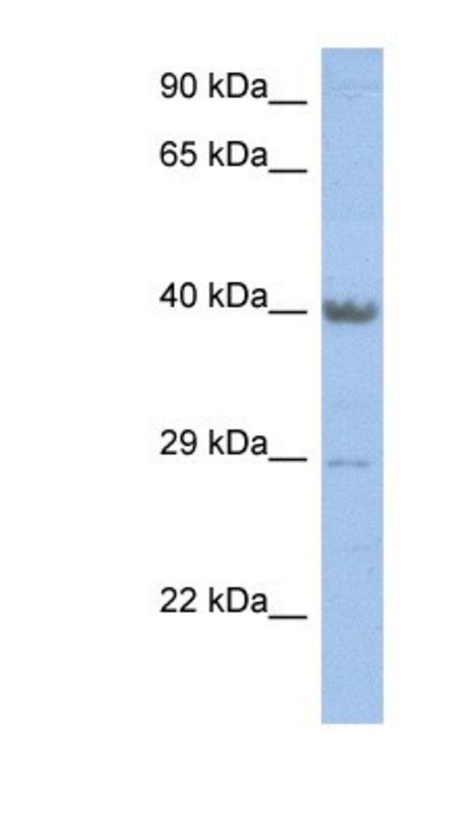 ZNF474 Rabbit anti-Human, Polyclonal, Novus Biologicals 100µL; Unlabeled:Life