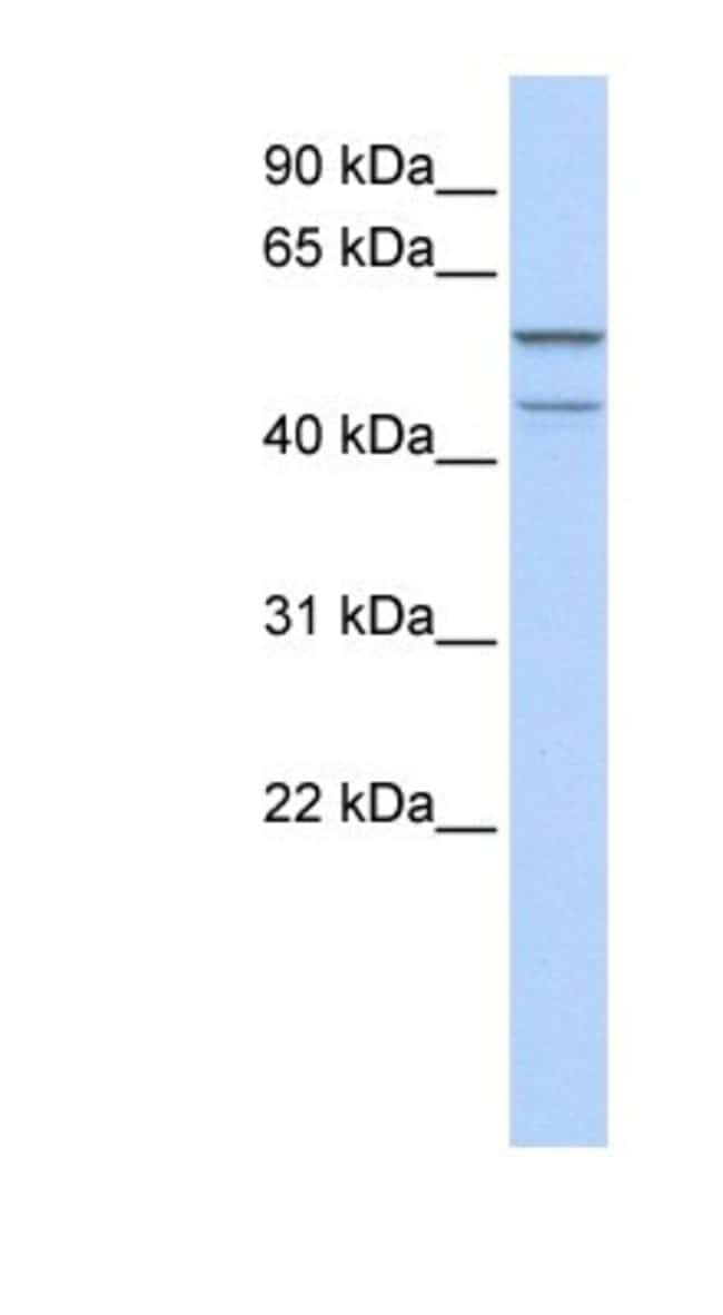 ZNF474 Rabbit anti-Human, Polyclonal, Novus Biologicals 20µL; Unlabeled
