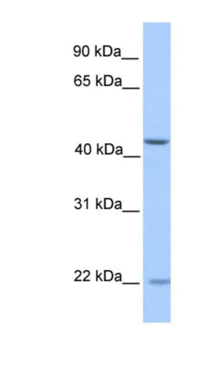 ZNF485 Rabbit anti-Human, Polyclonal, Novus Biologicals 100µL; Unlabeled:Life