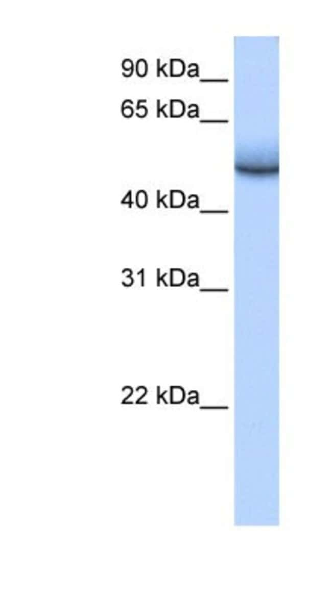 ZNF486 Rabbit anti-Human, Polyclonal, Novus Biologicals 100µL; Unlabeled:Life