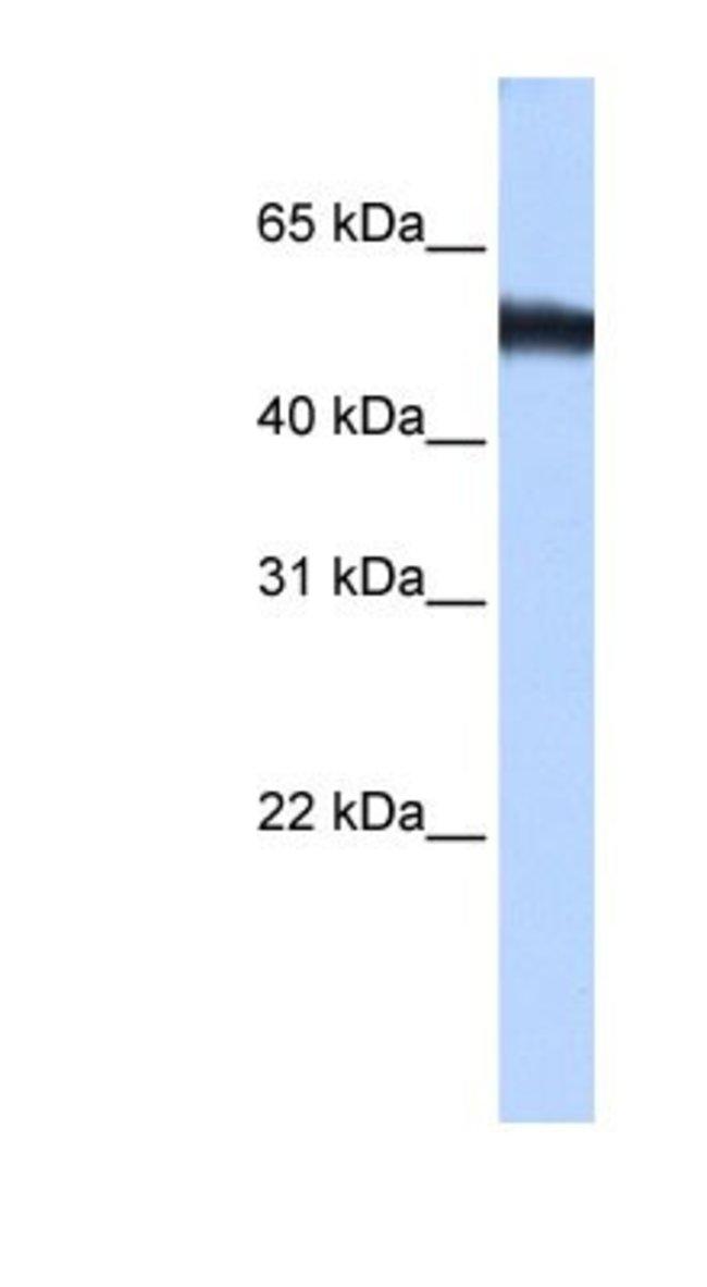 ZNF486 Rabbit anti-Human, Polyclonal, Novus Biologicals 20µL; Unlabeled