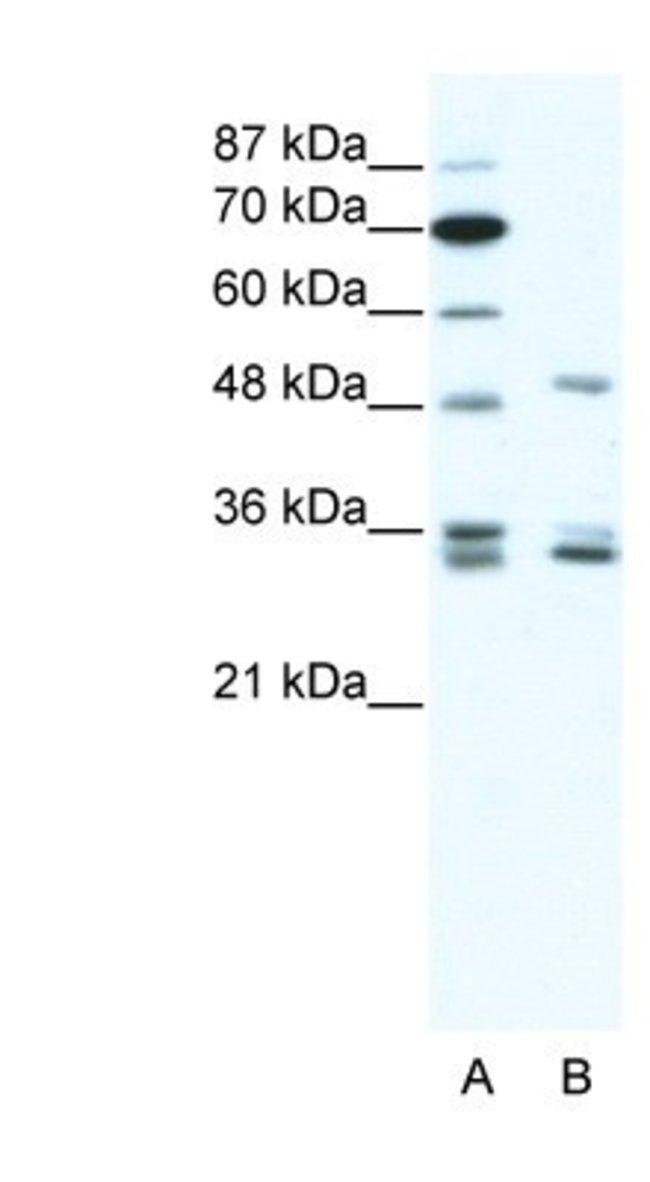 ZNF488 Rabbit anti-Human, Polyclonal, Novus Biologicals 100µL; Unlabeled:Life