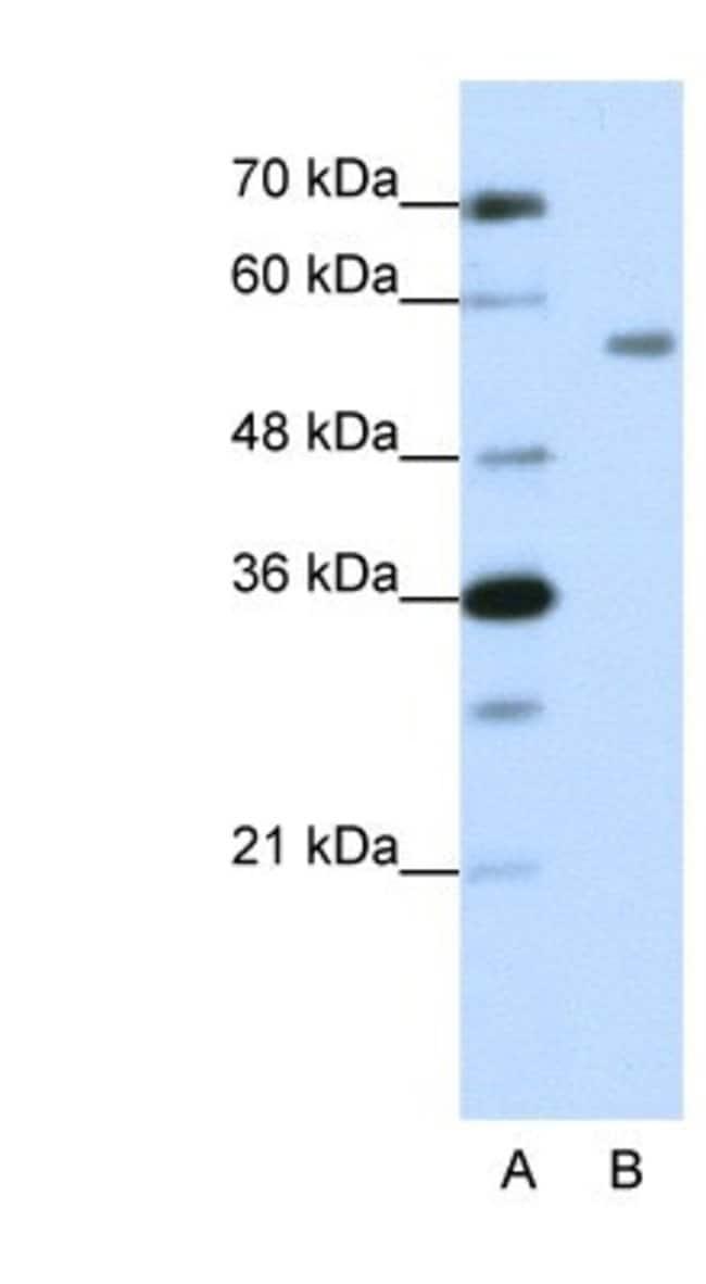 ZNF497 Rabbit anti-Human, Polyclonal, Novus Biologicals 20µL; Unlabeled