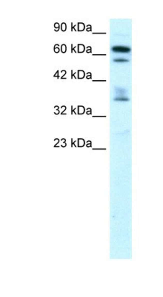 ZNF512 Rabbit anti-Human, Polyclonal, Novus Biologicals 20µL; Unlabeled