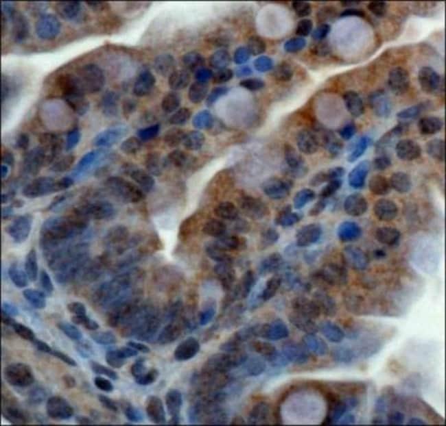 anti-ZNF521, Polyclonal, Novus Biologicals:Antibodies:Primary Antibodies