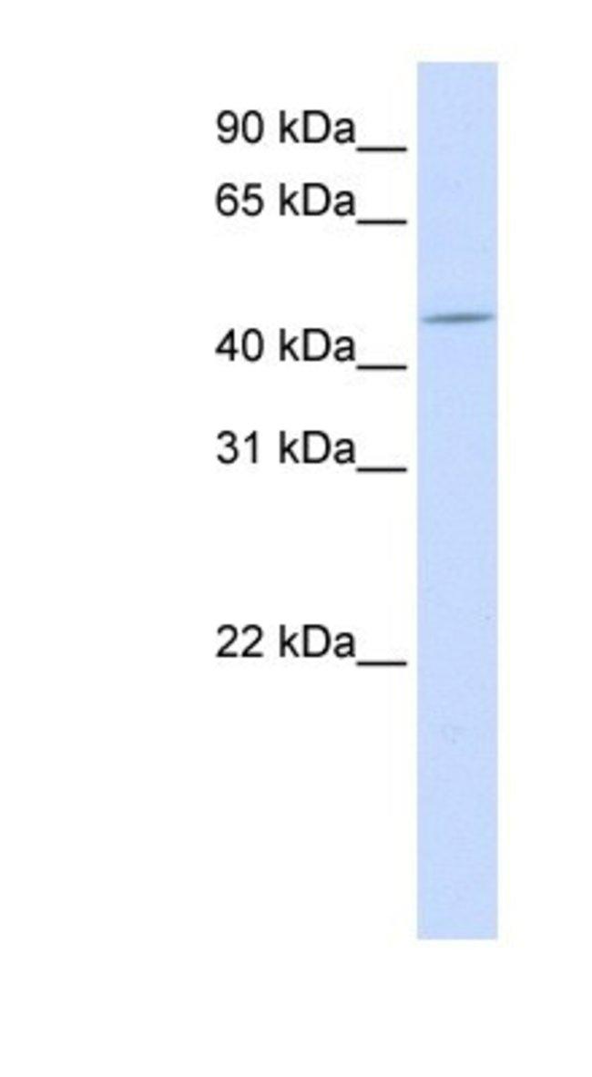 ZNF529 Rabbit anti-Human, Polyclonal, Novus Biologicals 20µL; Unlabeled