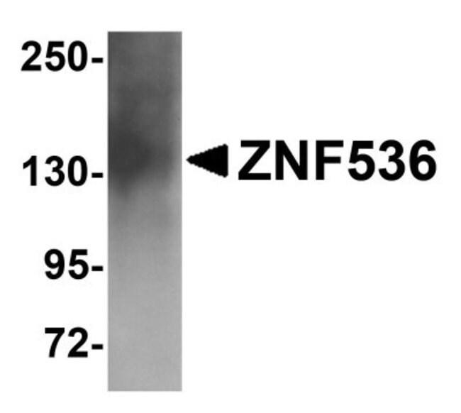 anti-ZNF536, Polyclonal, Novus Biologicals 0.1mg; Unlabeled:Life Sciences
