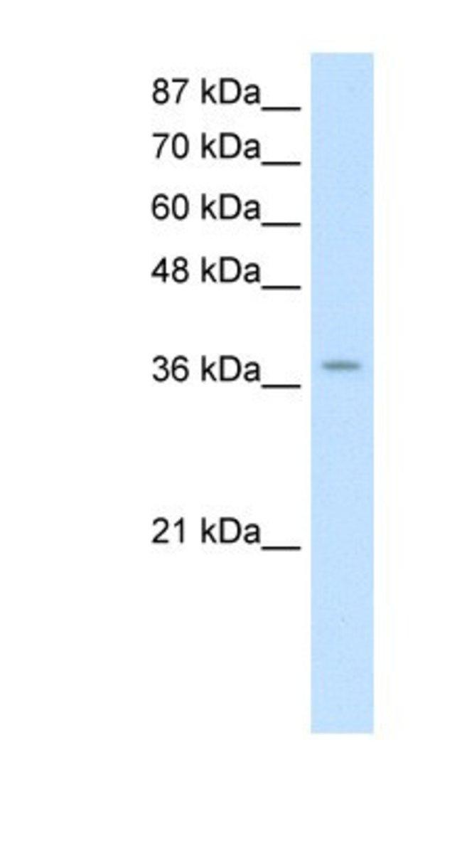 ZNF550 Rabbit anti-Human, Polyclonal, Novus Biologicals 20µL; Unlabeled