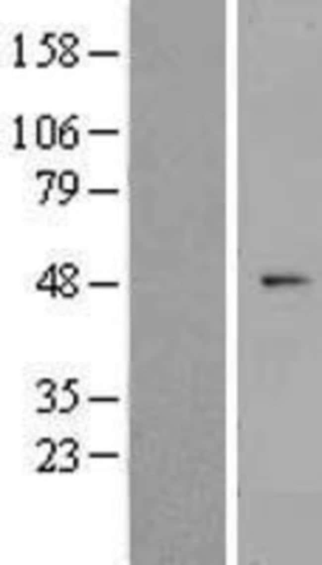 Novus Biologicals ZNF566 Overexpression Lysate (Native) 0.1mg:Life Sciences