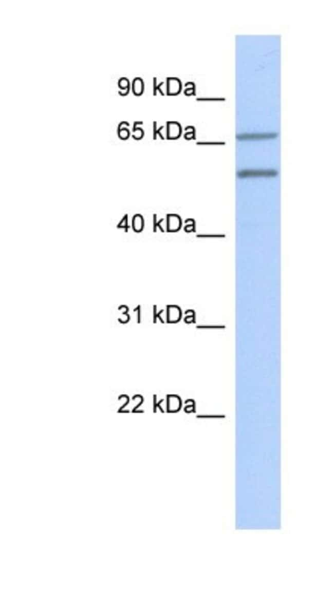 ZNF570 Rabbit anti-Human, Polyclonal, Novus Biologicals 100µL; Unlabeled:Life