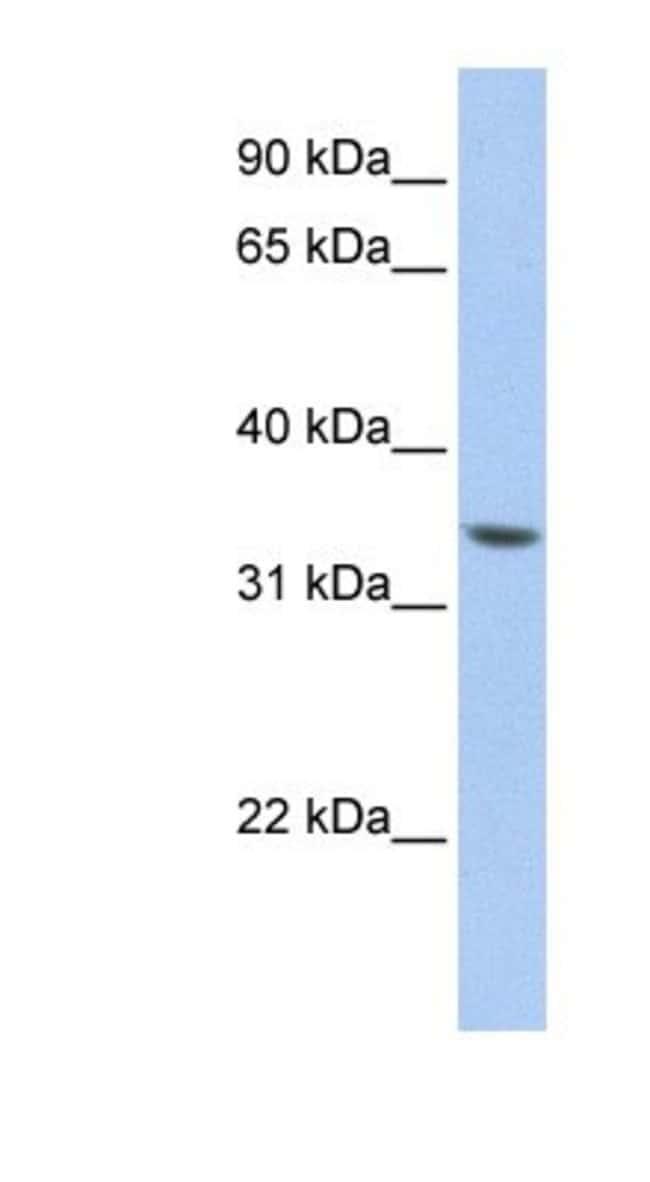 ZNF584 Rabbit anti-Human, Polyclonal, Novus Biologicals 100µL; Unlabeled:Life