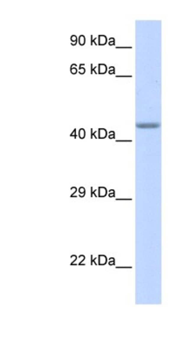 ZNF589 Rabbit anti-Human, Polyclonal, Novus Biologicals 100µL; Unlabeled:Life