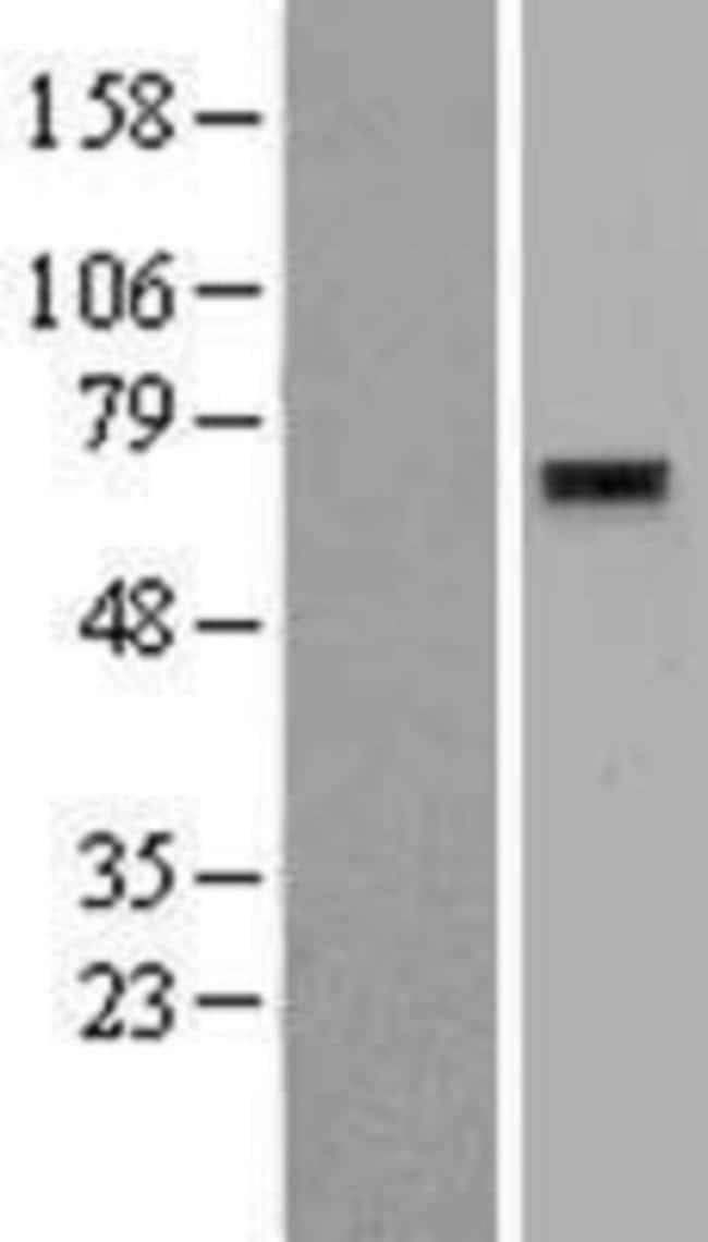 Novus Biologicals ZNF596 Overexpression Lysate (Native) 0.1mg:Life Sciences