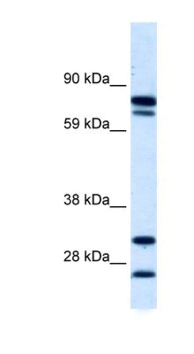 ZNF606 Rabbit anti-Human, Polyclonal, Novus Biologicals 100µL; Unlabeled:Life