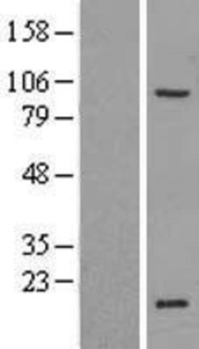 Novus Biologicals ZNF606 Overexpression Lysate (Native) 0.1mg:Life Sciences