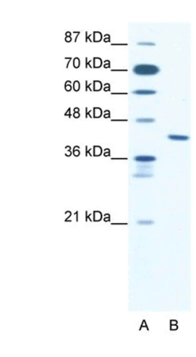 ZNF621 Rabbit anti-Human, Polyclonal, Novus Biologicals 20µL; Unlabeled