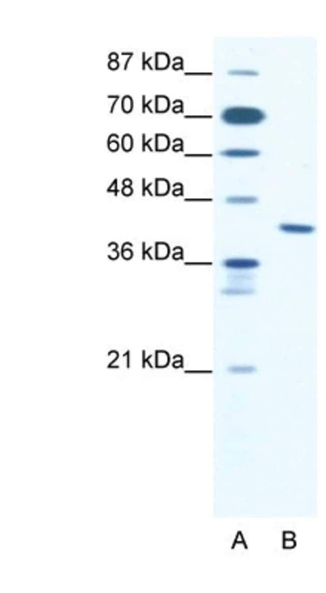 ZNF621 Rabbit anti-Human, Polyclonal, Novus Biologicals 100µL; Unlabeled:Life