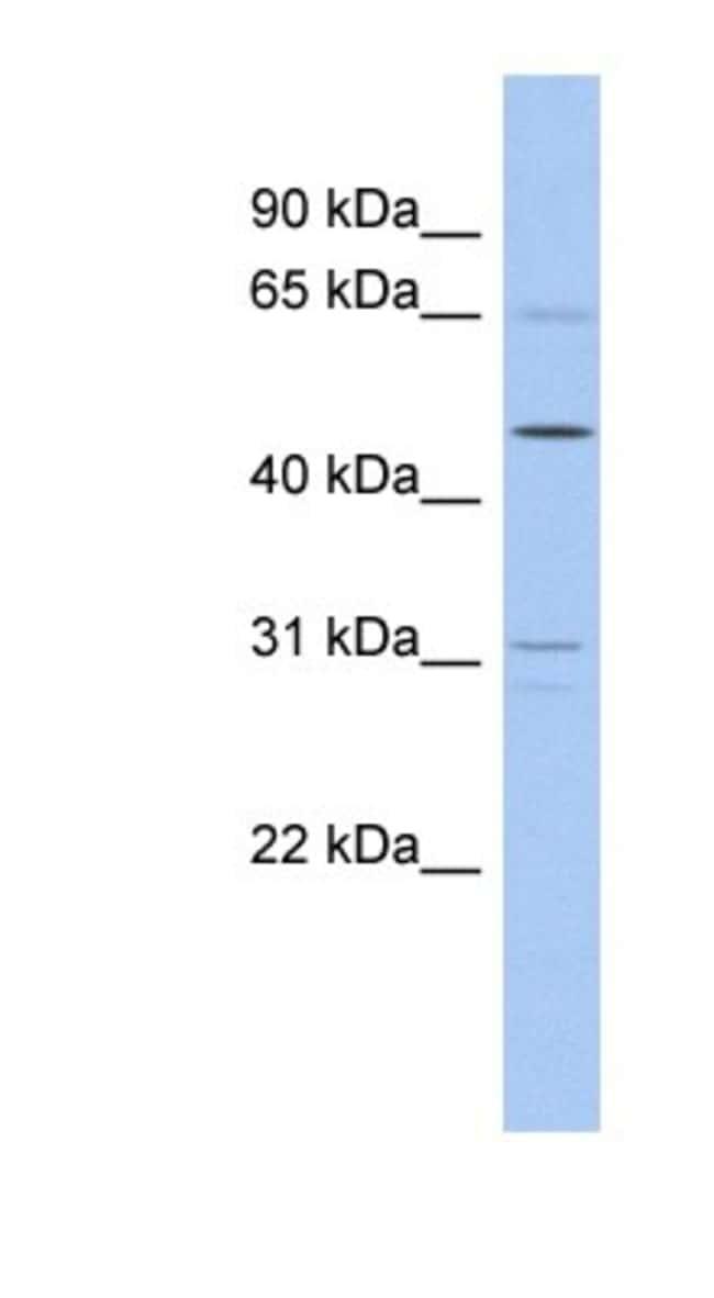 ZNF641 Rabbit anti-Human, Polyclonal, Novus Biologicals 20µL; Unlabeled
