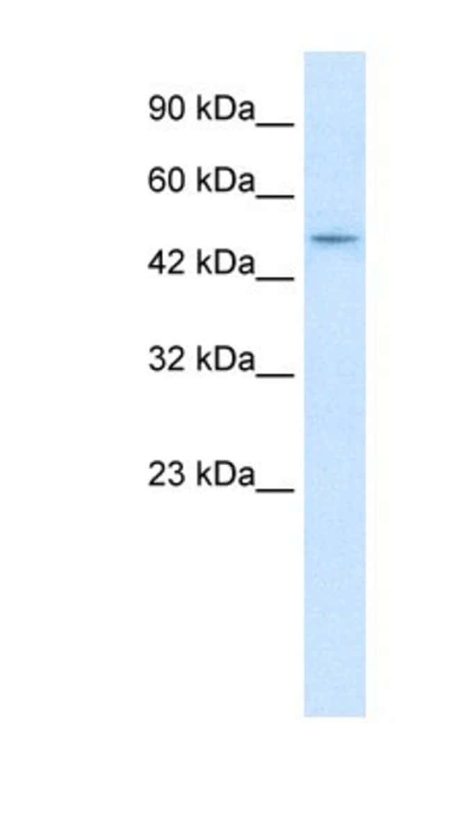 ZNF651 Rabbit anti-Human, Polyclonal, Novus Biologicals 100µL; Unlabeled:Life