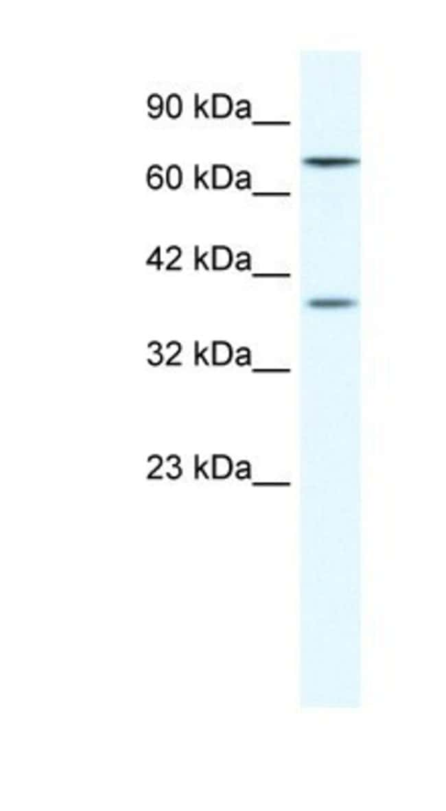 ZNF660 Rabbit anti-Human, Polyclonal, Novus Biologicals 20µL; Unlabeled
