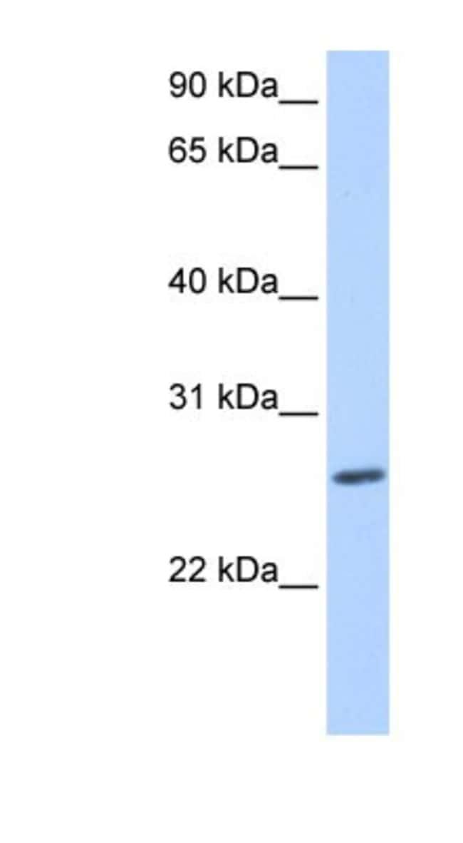 ZNF664 Rabbit anti-Human, Polyclonal, Novus Biologicals 20µL; Unlabeled