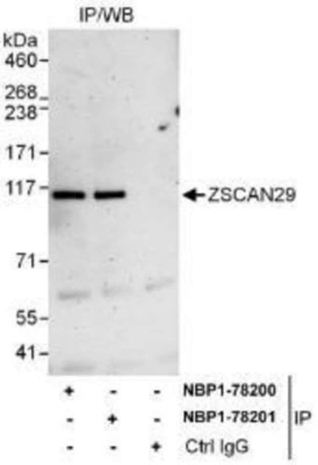 anti-ZNF690, Polyclonal, Novus Biologicals 0.1mg; Unlabeled:Life Sciences