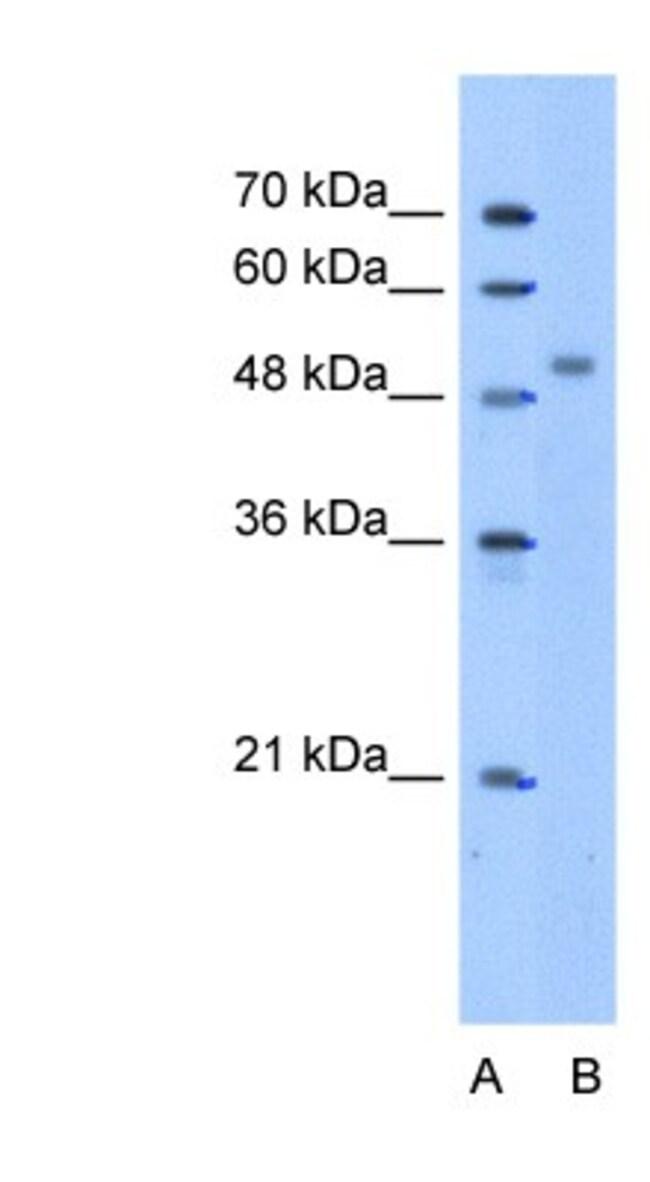 ZNF763 Rabbit anti-Human, Polyclonal, Novus Biologicals 20µL; Unlabeled