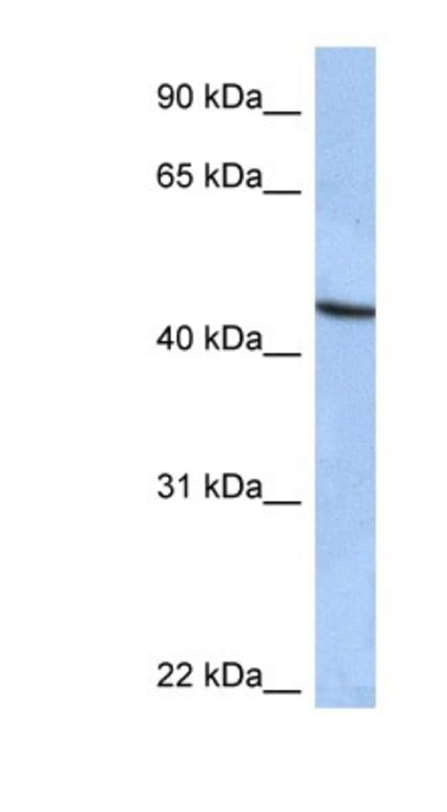 ZNF766 Rabbit anti-Human, Polyclonal, Novus Biologicals 100µL; Unlabeled:Life
