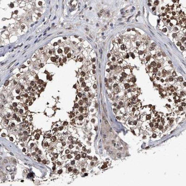 anti-ZNF76, Polyclonal, Novus Biologicals 0.1mL; Unlabeled:Life Sciences