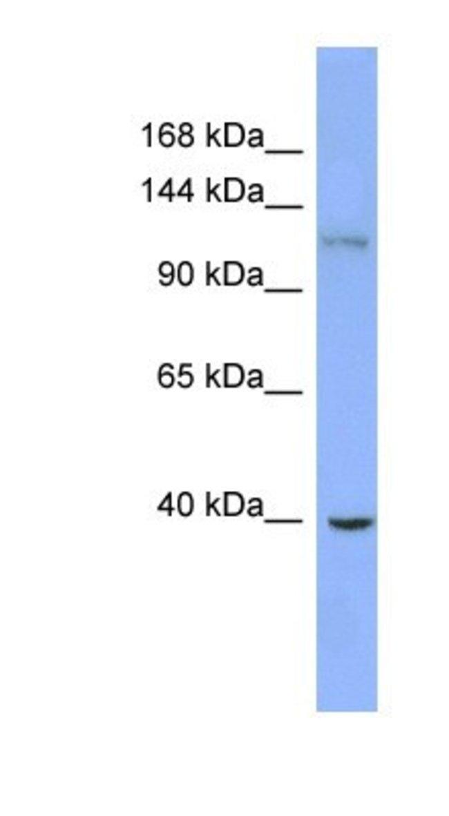 ZNF827 Rabbit anti-Human, Polyclonal, Novus Biologicals::