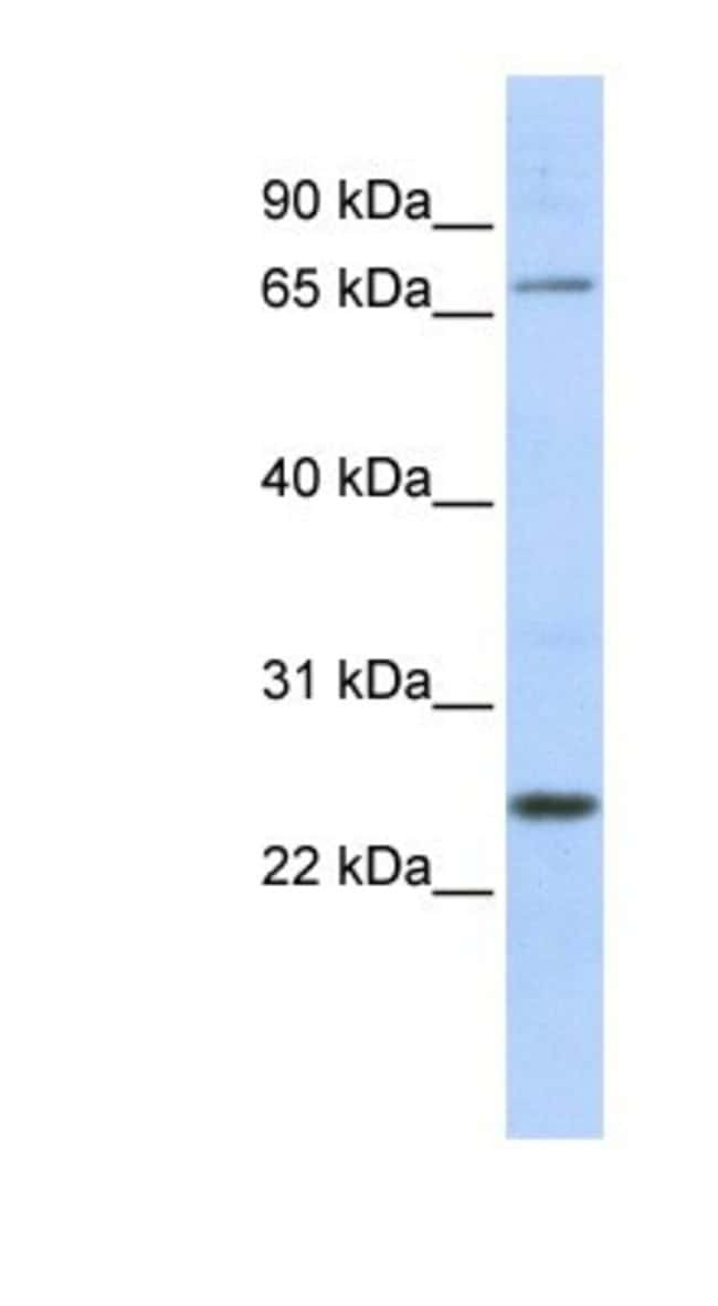 ZNF835 Rabbit anti-Human, Polyclonal, Novus Biologicals 20µL; Unlabeled