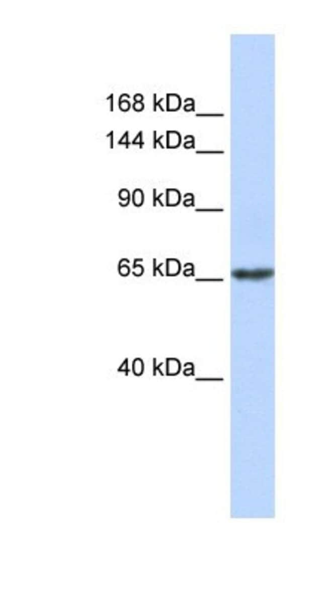 ZNF91 Rabbit anti-Human, Polyclonal, Novus Biologicals 20µL; Unlabeled