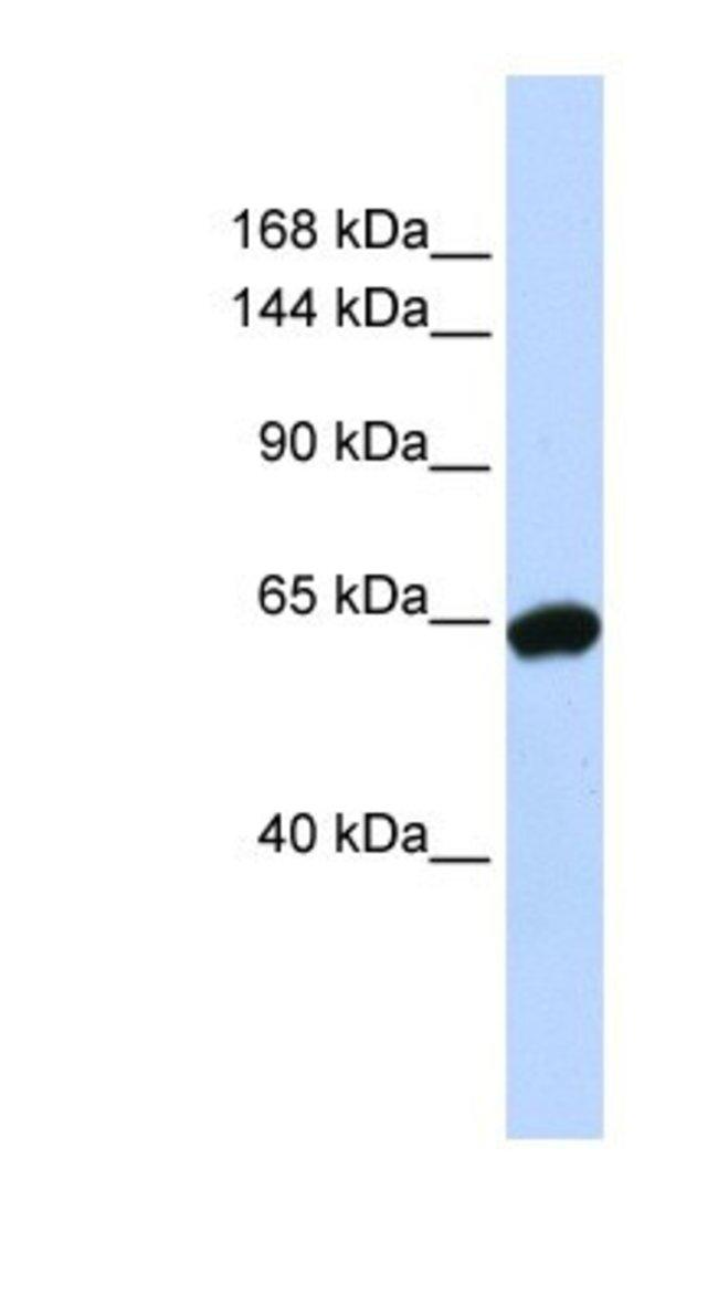 ZNF91 Rabbit anti-Human, Polyclonal, Novus Biologicals 100µL; Unlabeled:Life