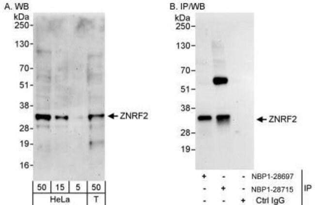 anti-ZNRF2, Polyclonal, Novus Biologicals 0.1mg; Unlabeled:Antibodies