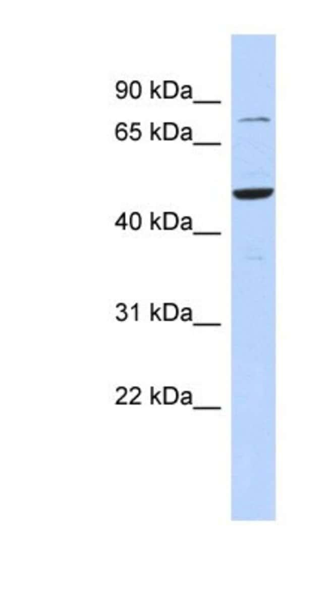 ZSCAN1 Rabbit anti-Human, Polyclonal, Novus Biologicals 100µL; Unlabeled:Life