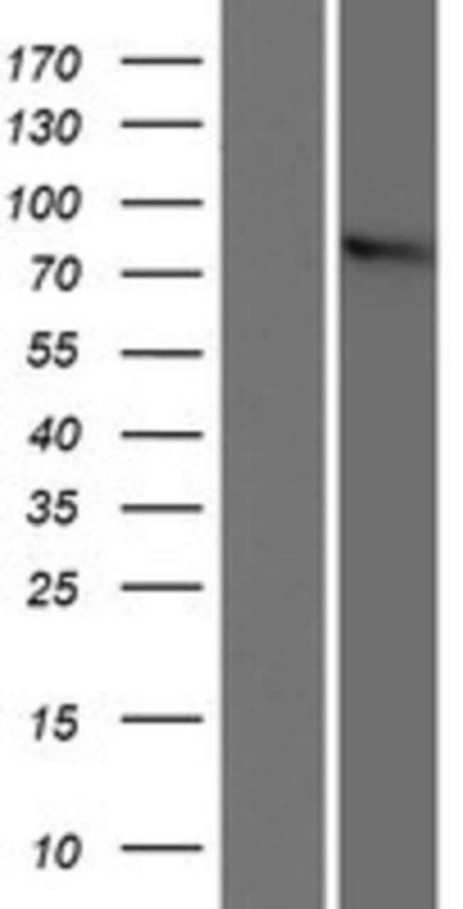 Novus Biologicals ZYG11B Overexpression Lysate (Native) 0.1mg:Life Sciences