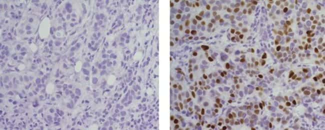 Progesterone Receptor, Biotin, clone: KMC912, eBioscience™ 100μg; Biotin Progesterone Receptor, Biotin, clone: KMC912, eBioscience™