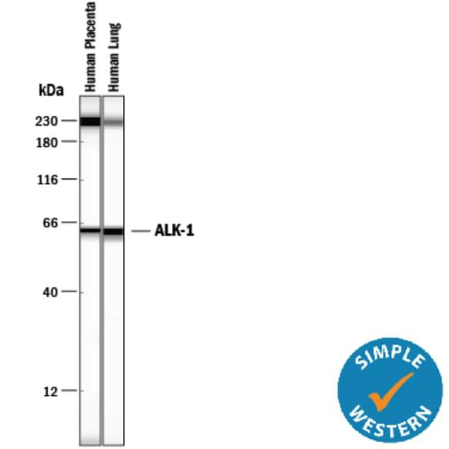 ALK-1 Mouse anti-Human, Clone: 117720, RD Systems:Antibodies:Primary Antibodies
