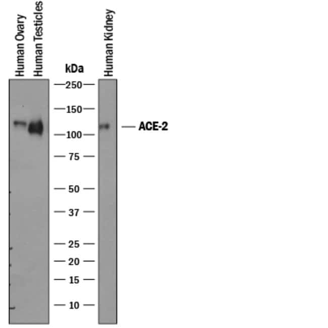 ACE-2 Goat anti-Human, Mouse, Rat, Hamster, Polyclonal, R&D Systems 100µg;