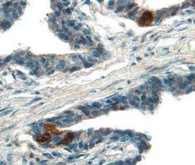 ADAM15 Ectodomain Mouse anti-Human, Clone: 23G9, RD Systems:Antibodies:Primary