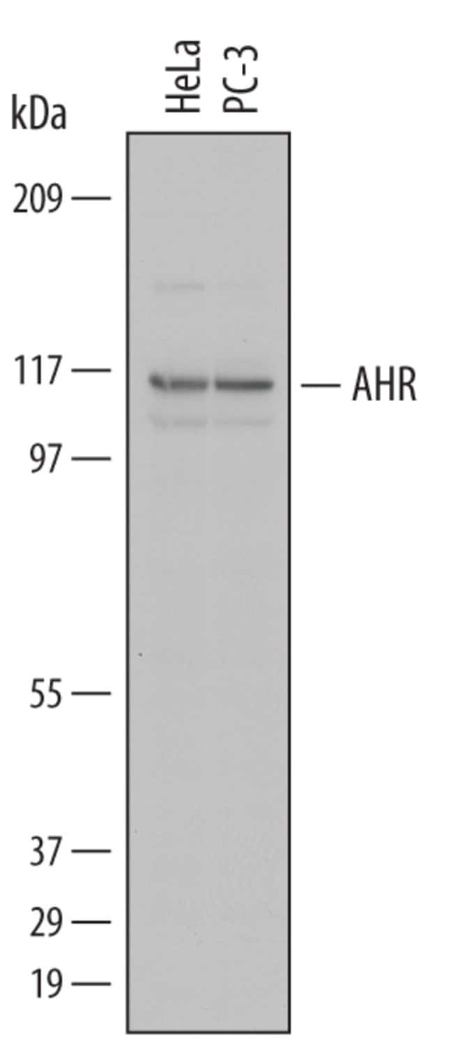 AHR Sheep anti-Human, Polyclonal, R 25µg; Unlabeled:Life Sciences
