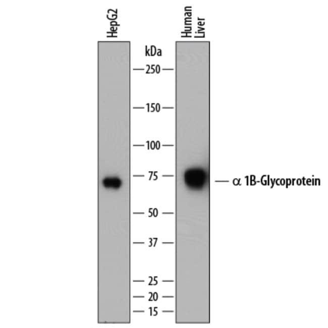 alpha 1B-Glycoprotein Sheep anti-Human, Polyclonal, R 25µg; Unlabeled:Life