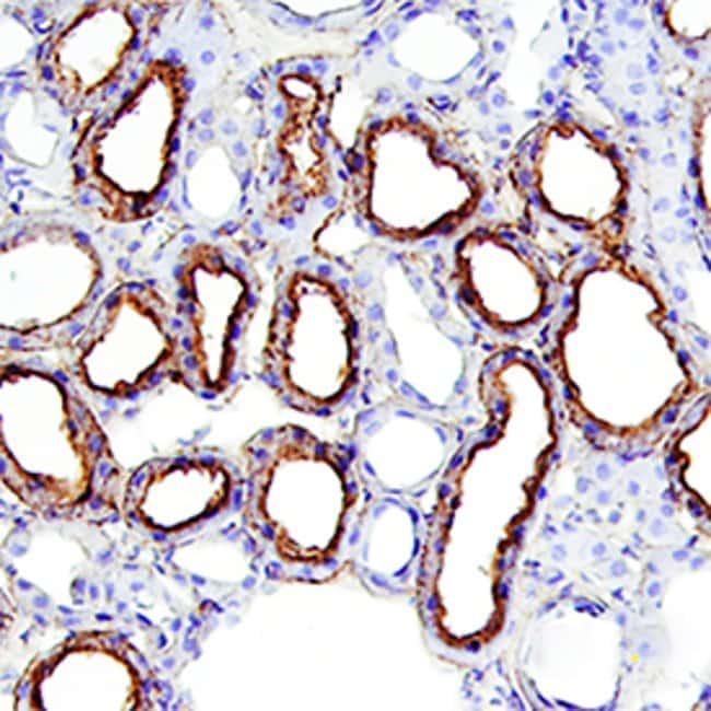 alpha 2u-Globulin Mouse anti-Rat, Clone: 129736, RD Systems:Antibodies:Primary