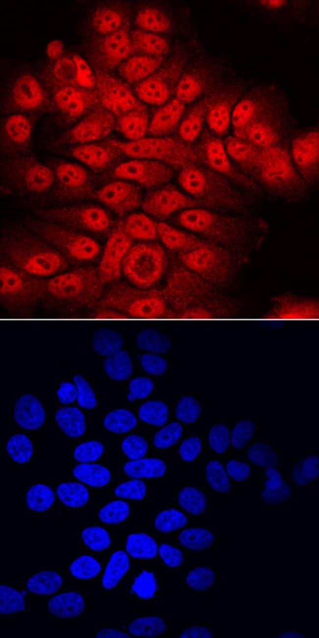 ATBF1/ZFHX3 Sheep anti-Human, Polyclonal, R 100µg; Unlabeled