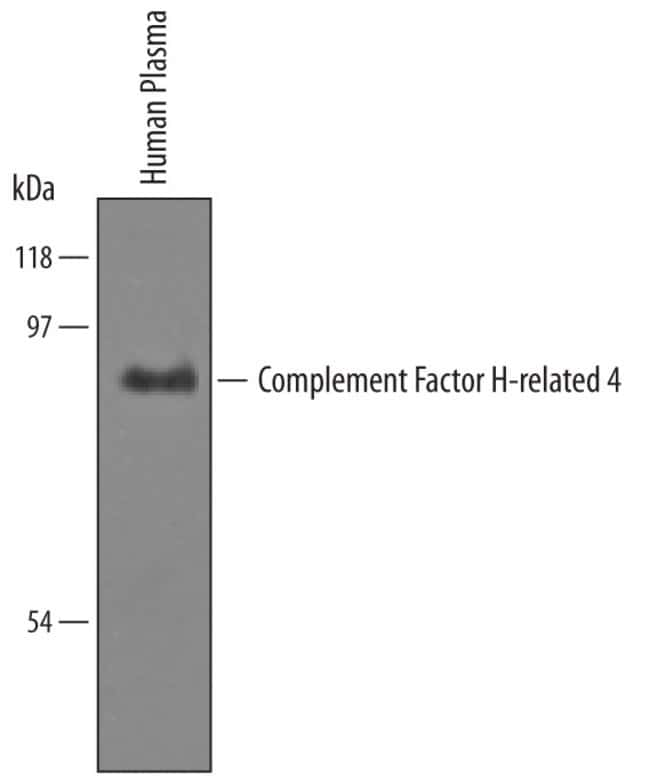 Complement Factor H-related 4/CFHR4 Sheep anti-Human, Polyclonal, R 100µg;