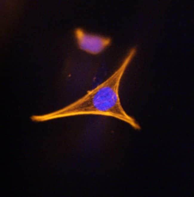 Corin Rat anti-Human, Clone: 231443, RD Systems:Antibodies:Primary Antibodies