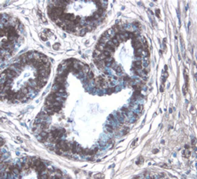 CTGF/CCN2 C-Terminus Mouse anti-Human, Clone: 88430, RD Systems:Antibodies:Primary