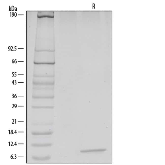 RD SystemsHuman/Feline/Rhesus Macaque CXCL12/SDF-1 alpha Recombinant Protein:Biochemical