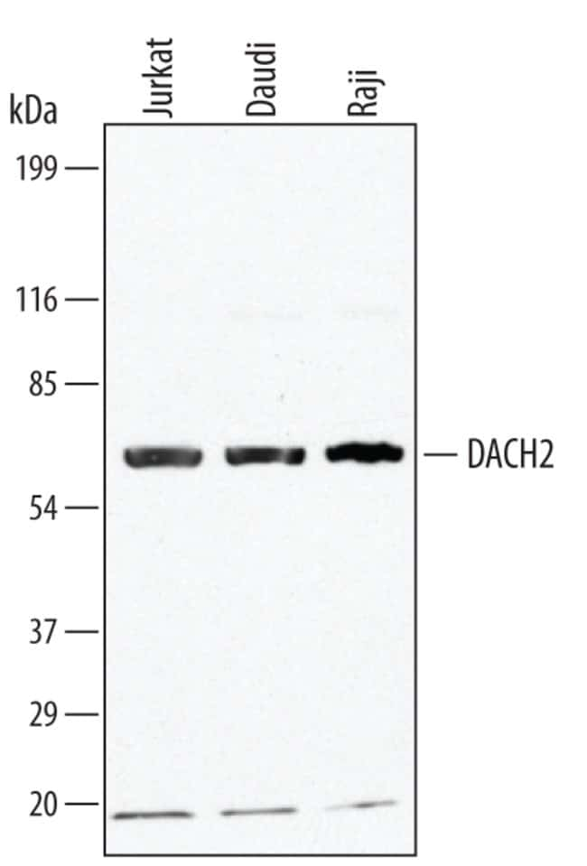DACH2 Goat anti-Human, Mouse, Polyclonal, R 100µg; Unlabeled